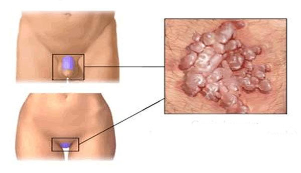 belső papilloma vírus tünetei