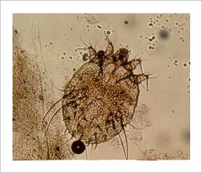 Mi a parazita opisthorchiasis
