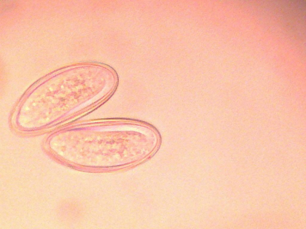 A pinworm betegséget hívják