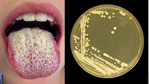 Természetes megoldások a Candida ellen
