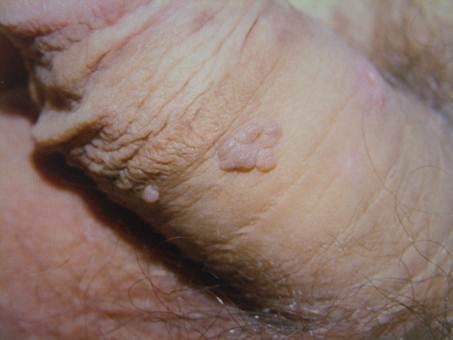 genitális szemölcsök eltávolítása intim helyeken módszerek
