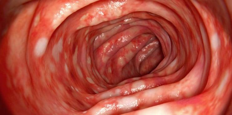 genitális szemölcsök, hogyan lehet vele élni papilloma a nyak orvosán