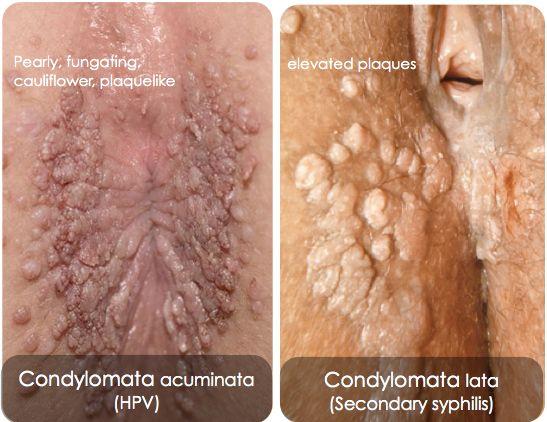 condyloma acuminata hím
