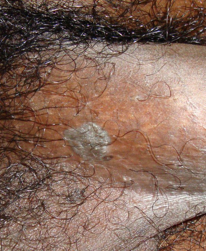 condyloma acuminatum hpv a paraziták mélytisztítása