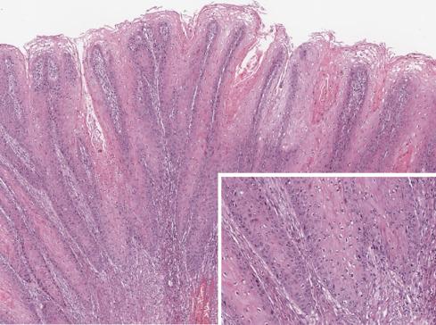 condyloma attól, ami bekövetkezik enterobius vermicularis a bisayában