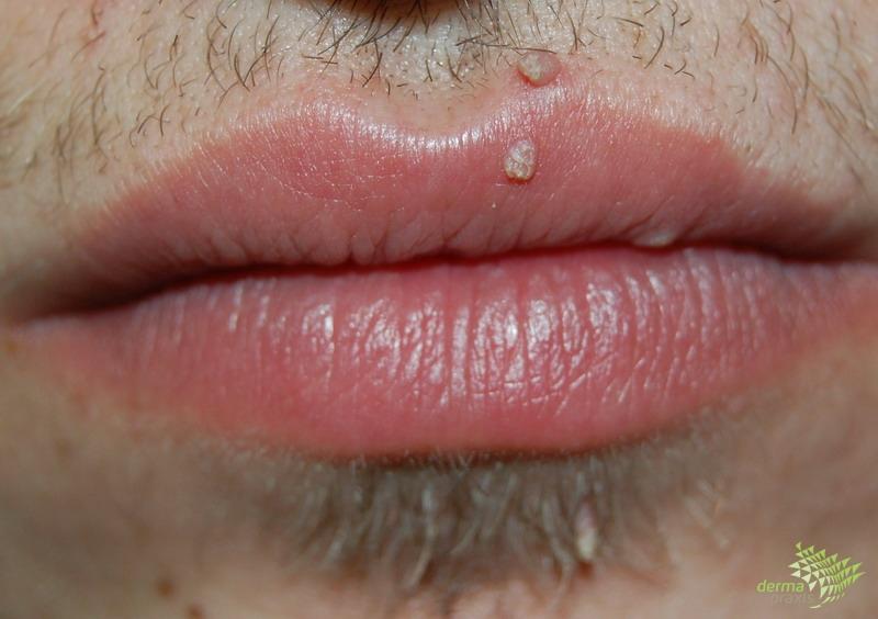 condyloma kezelése az arcon