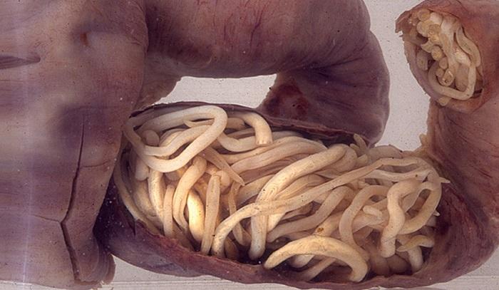 jó gyógyszer az emberi test parazitái ellen nem patogén baktériumok
