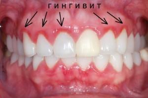 orális rák fogínygyulladás vestibularis papillomatosis vp)