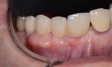 orális rák fogínygyulladás olcsó papilloma eltávolítás