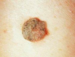 A női nemi szerv betegségei és a lélek – a kineziológus szemével