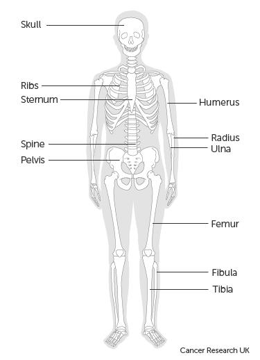 szarkóma rák alsó hát)