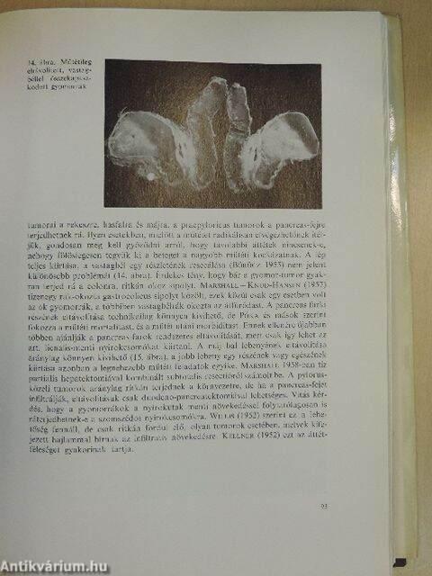 gyomorrák könyv)