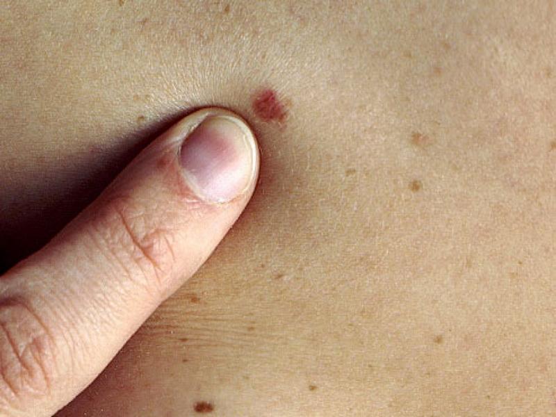 bőrrák átvitele