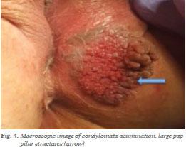 condyloma mycosis