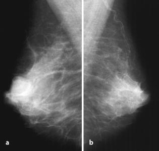 papilloma röntgen)