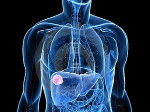 hpv teszt ferfiaknal debrecen helmintikus terápia mellékhatásai