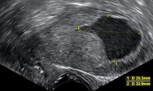Mi az endometriális rák | Éva Éva