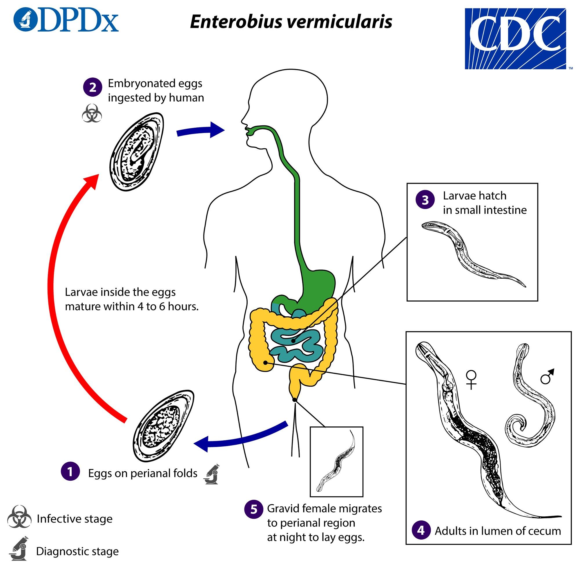 enterobiasis patofiziológia