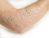 a papilloma vírus tünetei, ahogy összehúzódnak
