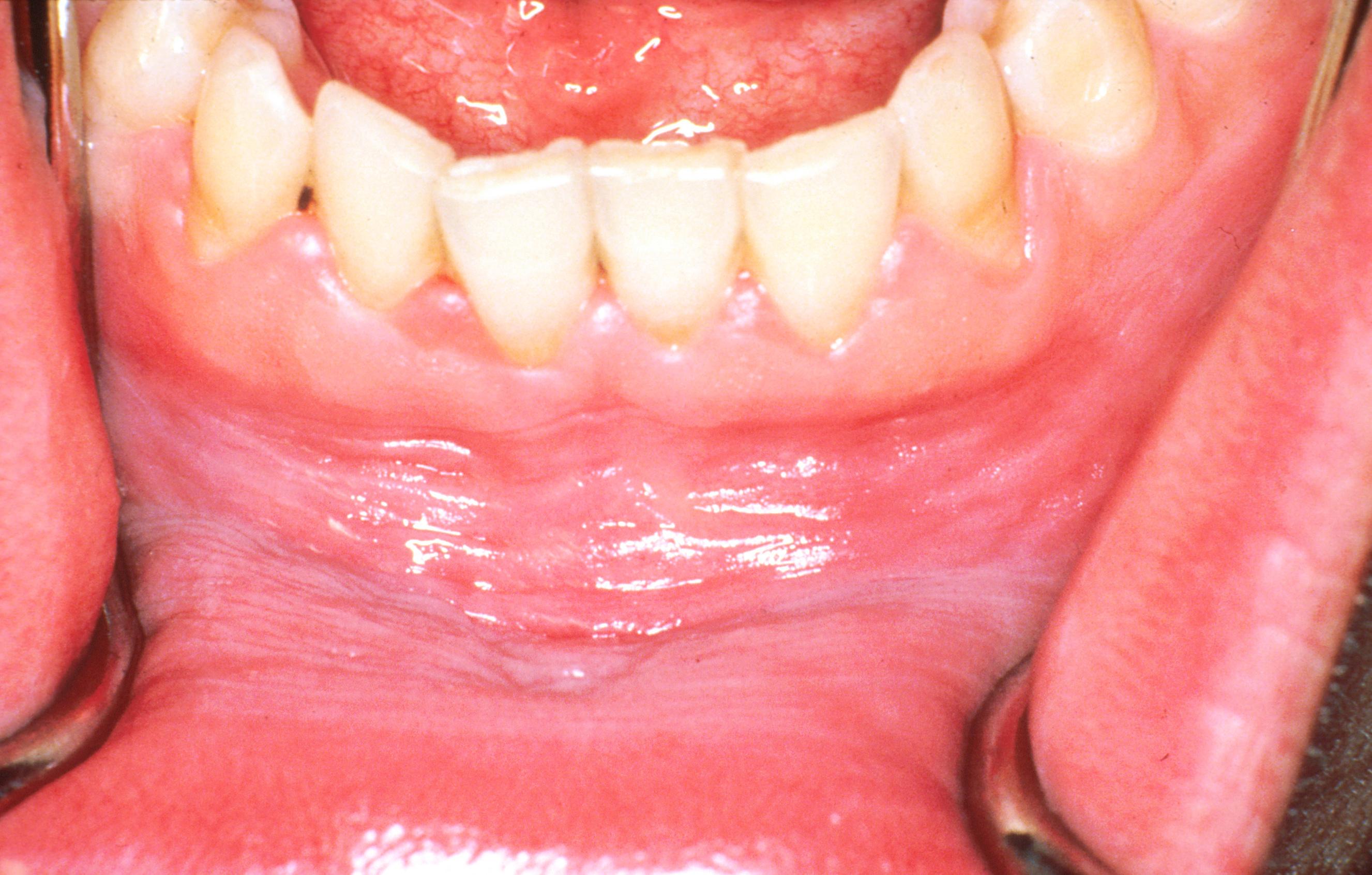 fehér condyloma a szájban