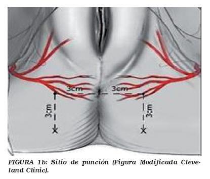 a genitális szemölcsök kolposzkópiája