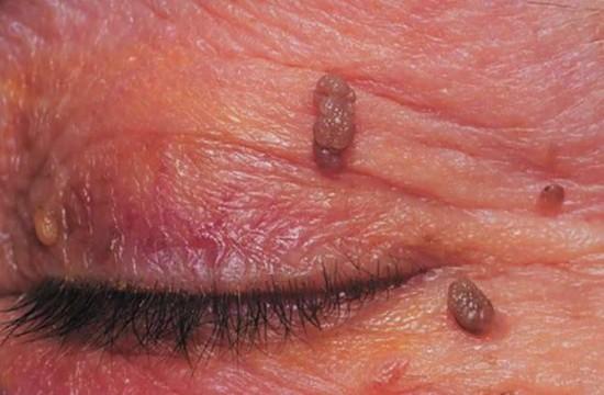 papilloma bőr jóindulatú