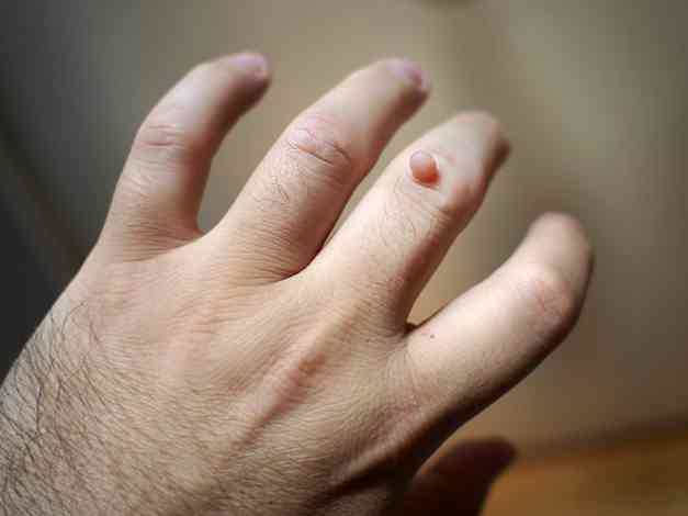 papilloma vírus átviteli kezek oxiori képek