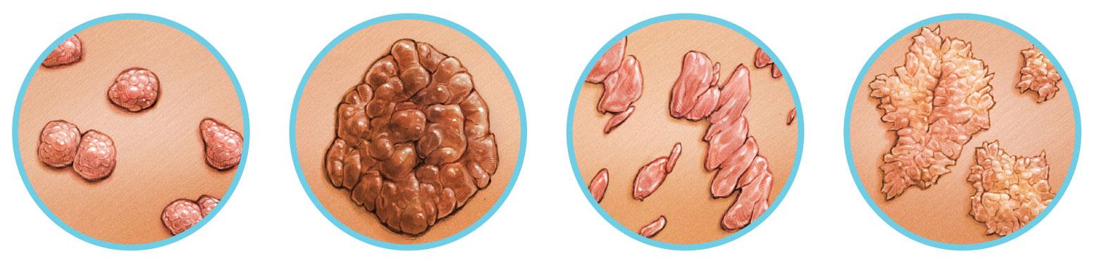 genitális szemölcsök kriodestrukció