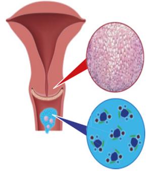 hogyan kell kezelni a papillomavírus fertőzést