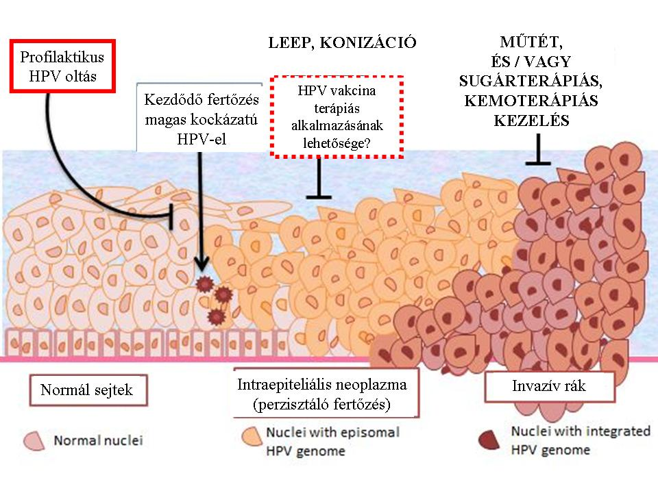 a genitális szemölcsök betegségének kezelése bélparaziták kezelése felnőtteknél