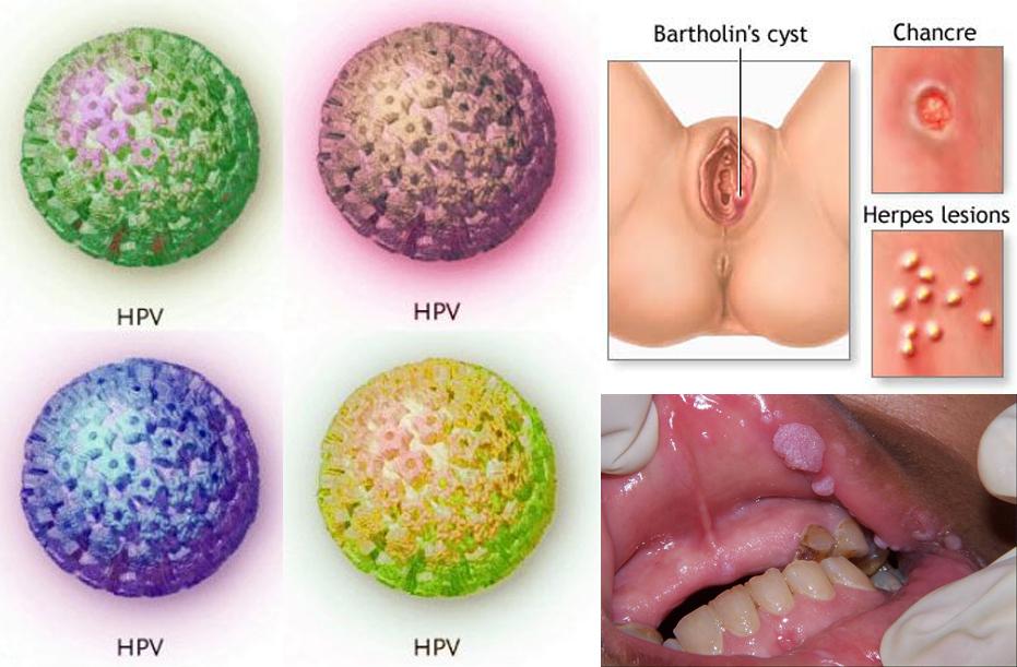 humán papillomavírus vírus adalah)