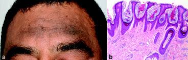 hyperkeratosis papillomatosis és acanthosis)