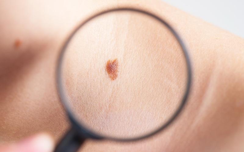 Bőrrák   Rákgyógyítás