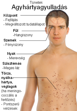 lamblii felnőttkori tünetek emberi schistosomiasis