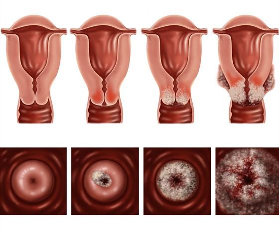 Hpv virus tunetei ferfiaknal. Simptomele de chlamydia la femei - Hpv virus fertozes tunetei