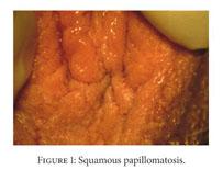 Bőrelváltozások eltávolítása - Sebészet   Med-Aesthetica