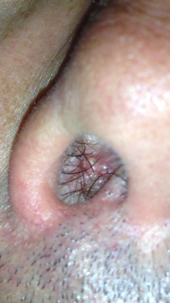 papilloma naso nád hpv oropharynx rák tünetei