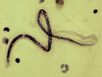 Parazita eltávolító rendszer