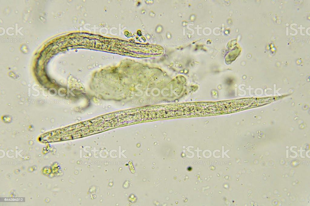 pinworms bélférgek
