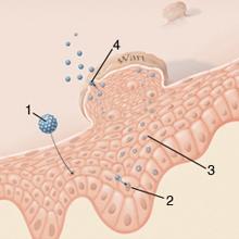 Derma-Art - Bőrgyógyászat - Radiofrekvenciás bőrsebészet