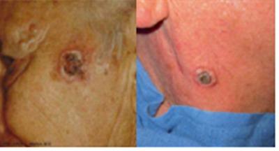 tetoválásból származó bőrrák)