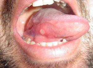 szájüregi rák természetes kezelése)