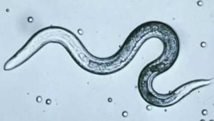 pinworms a bb-ben)