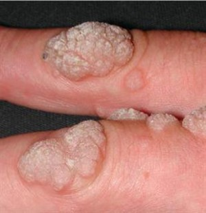papilloma vírus belirtileri