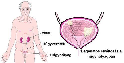 Hólyagrák tünetei és kezelése