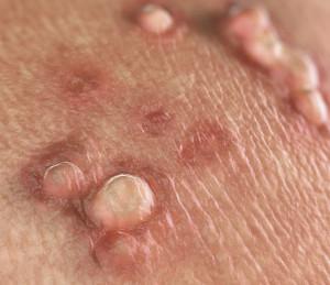 hpv 16 vírus schwangerschaft