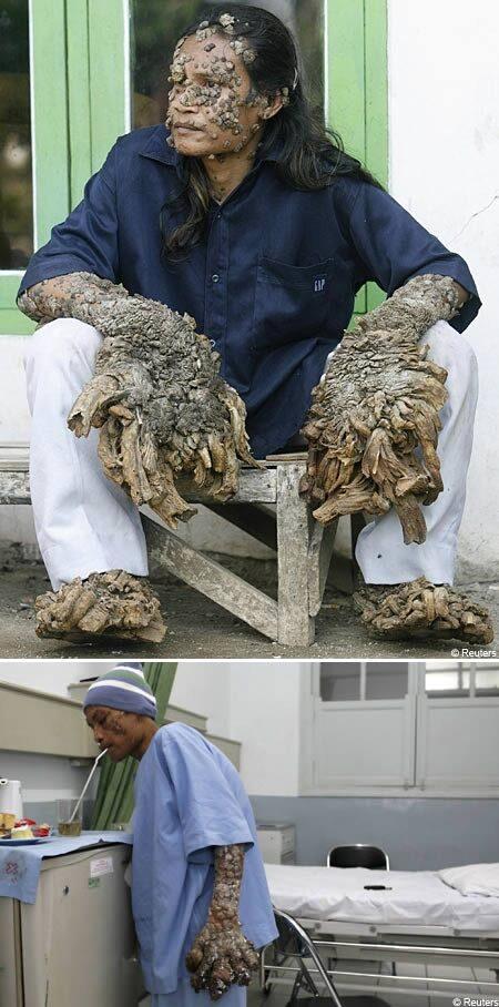 hpv bőrbetegség)