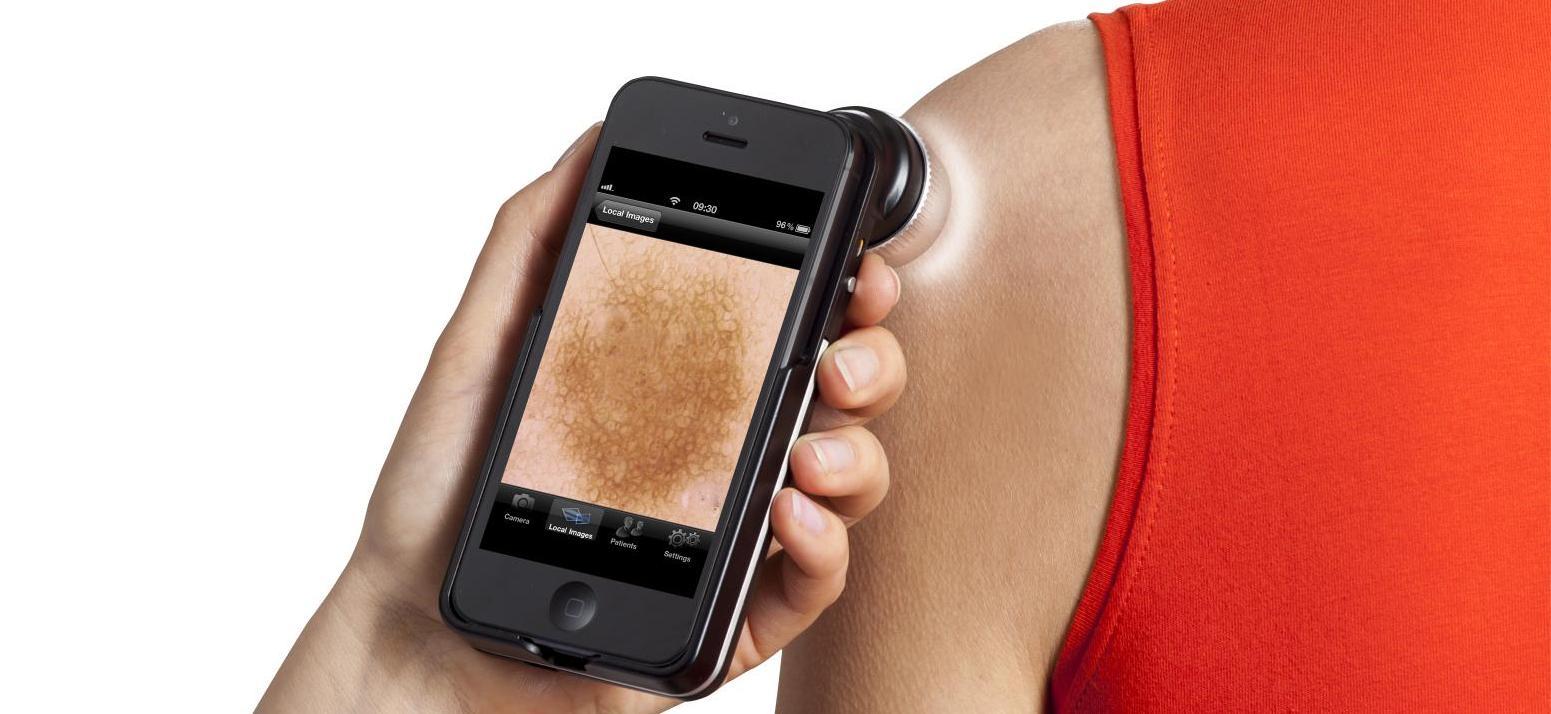 a bőrrák meghatározása