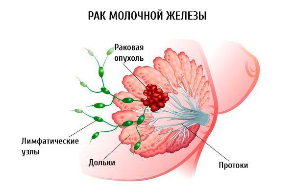 hármas negatív rák)
