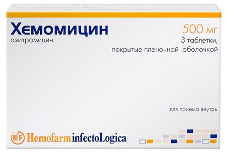 Papillómák diagnosztizálása és kezelése a torokban - Fájdalmas orr
